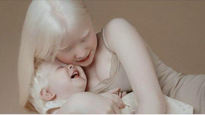 Siostry-albinoski urodzone w odstępie 12 lat oczarowały internet swoimi fotografiami
